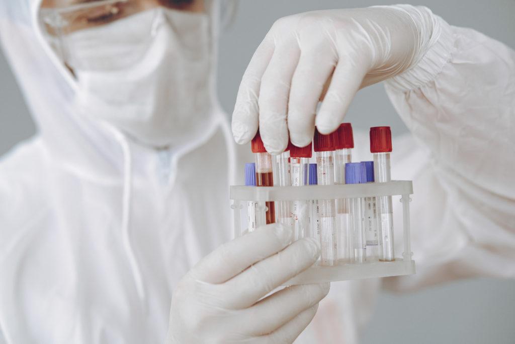 test genético covid 19